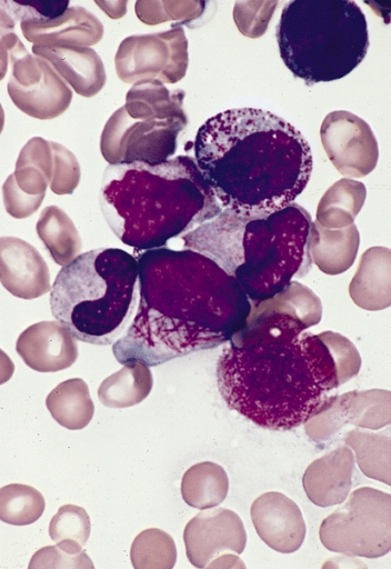 faggot_cell_in_acute-promyelocytic-leukemia-medlem-project_leukemia_treatment