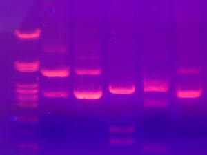 Protéomique Long Long Life Vieillissement Transhumanisme
