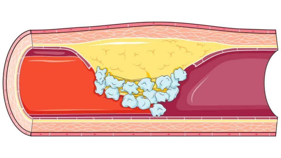 cardiovascular diseases-Long-Long-Life-transhumanism health longevity aging
