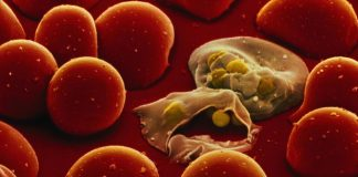 Microfluidic for low cost detection of malaria featured image