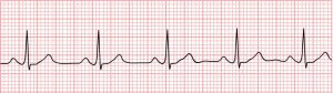 carte-physiologique-cardiac-rythm