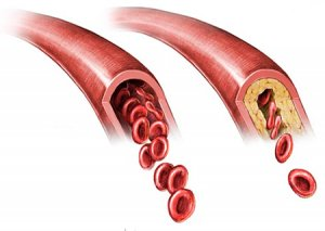Cerebral-atherosclerosis-measure of aging long long life transhumanism longevity anti aging