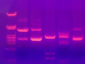 Hack aging with the study of proteomics long long life transhumanism longevity anti aging nbic 2