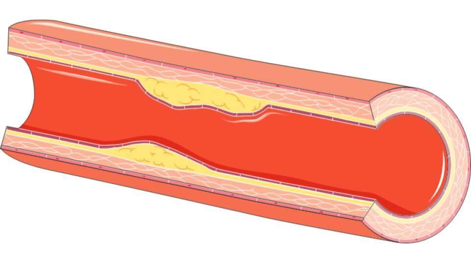 atherome Long Long Life cardiovasculaires vieillissement santé longévité