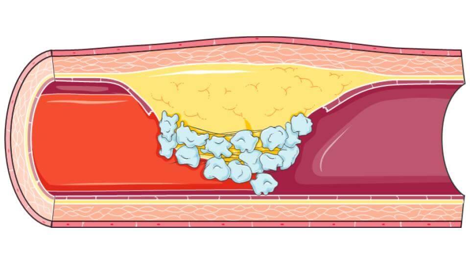 thrombus Long Long Life cardiovasculaires vieillissement santé longévité